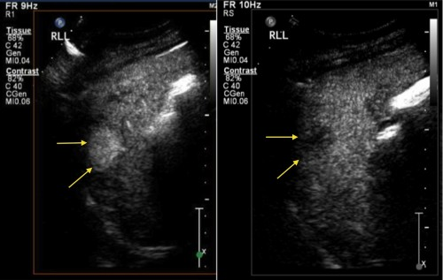 This patient with alcoholic liver disease had a routine ultrasound of liver showing a new hypoechoic lesion in the right lobe. CEUS was performed. The lesion demonstrated hyperenhancement, showing rapid uptake of the injected microbubbles resulting in the mass becoming hyperechoic (left-hand image). Subsequently, the lesion 'washes out', becoming hypechoic relative to the remainder of the liver parenchyma (right image). These enhancement characteristics are typical of hepatocellular carcinoma.