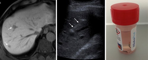 This patient was diagnosed with ocular melanoma. MRI liver, left, performed because of the suspicion of metastatic disease on staging CT, shows two probable metastases (arrows). A targeted ultrasound-guided liver biopsy was performed (middle image, needle indicated by arrows). The specimens this yielded are in the pot of formaldehyde on the right. Note how the majority of the tissue in both samples is black - this is due to the presence of melanin.