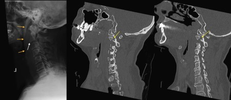 C2 fracture – XR and CT