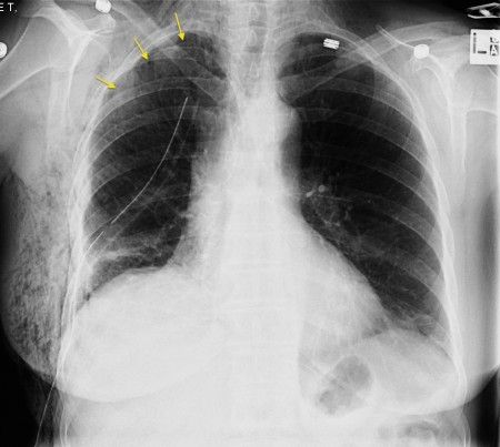 Pneumothorax and surgical emphysema
