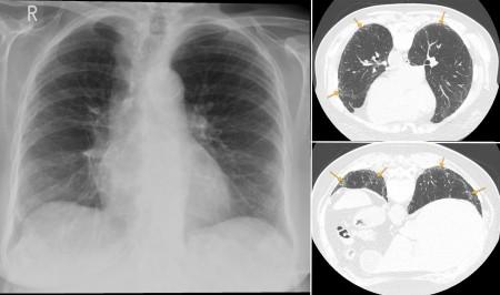 Interstitial lung disease – UIP