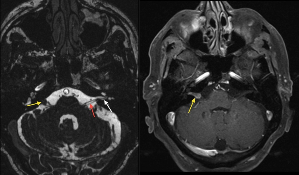 Acoustic neuroma - Radiology at St. Vincent\'s University Hospital