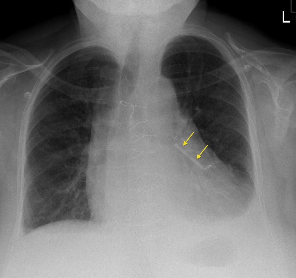 Atrial appendage closure device - Radiology at St. Vincent\'s ...