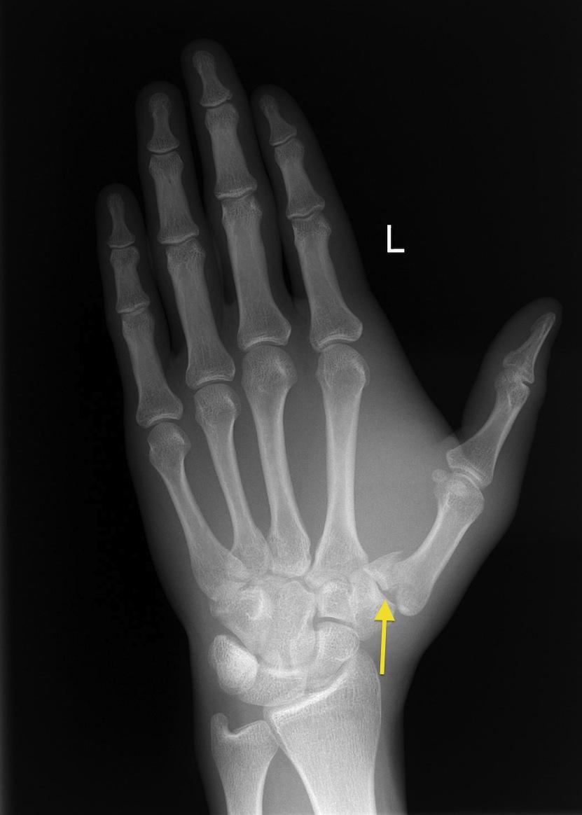Jefferson fracture case study