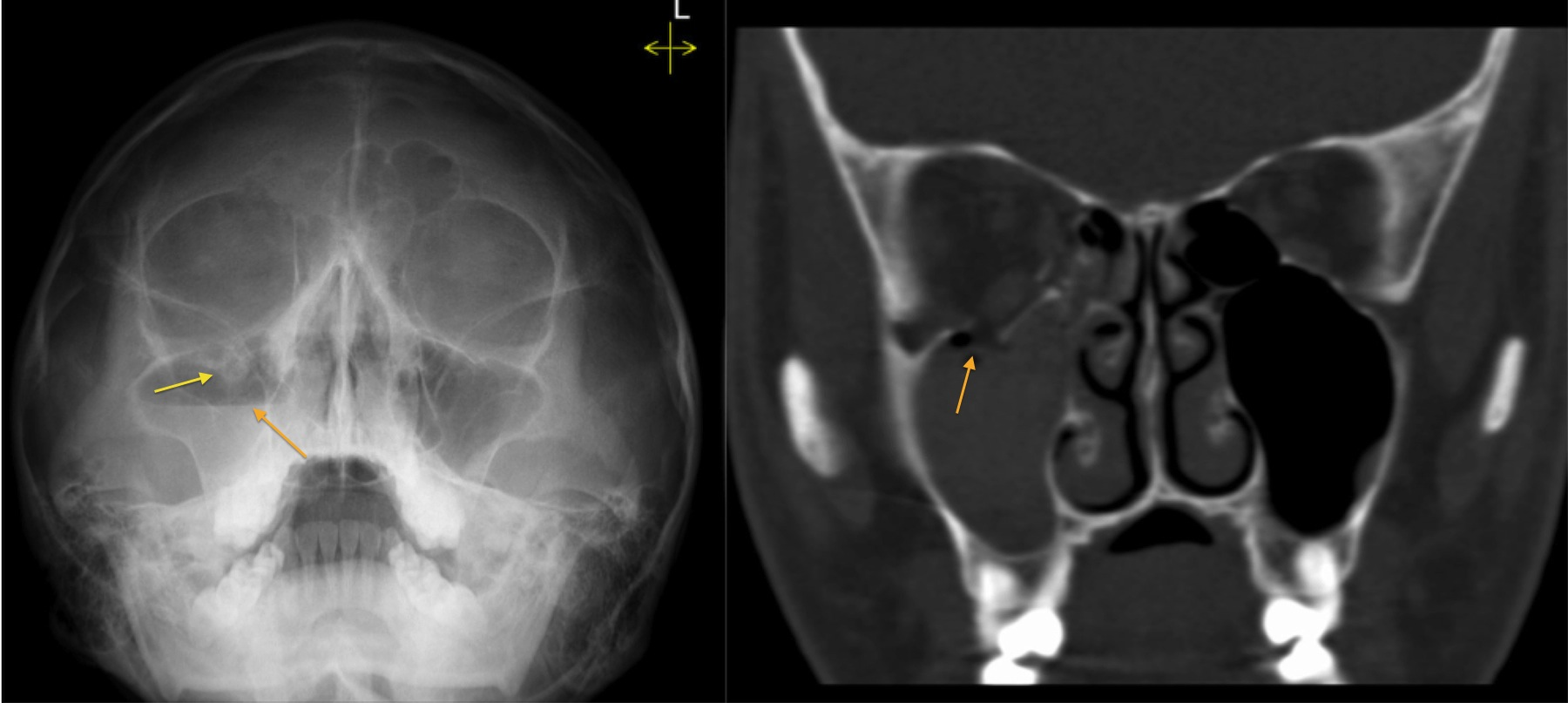 Orbital blowout fracture - Radiology at St. Vincent\'s University ...