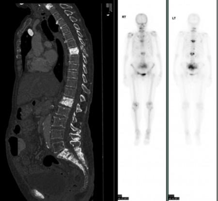 Bone metastases – CT and bone scan