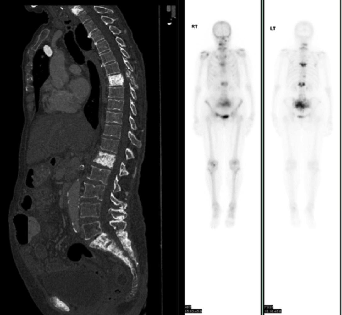 Breast cancer metastasis in bone