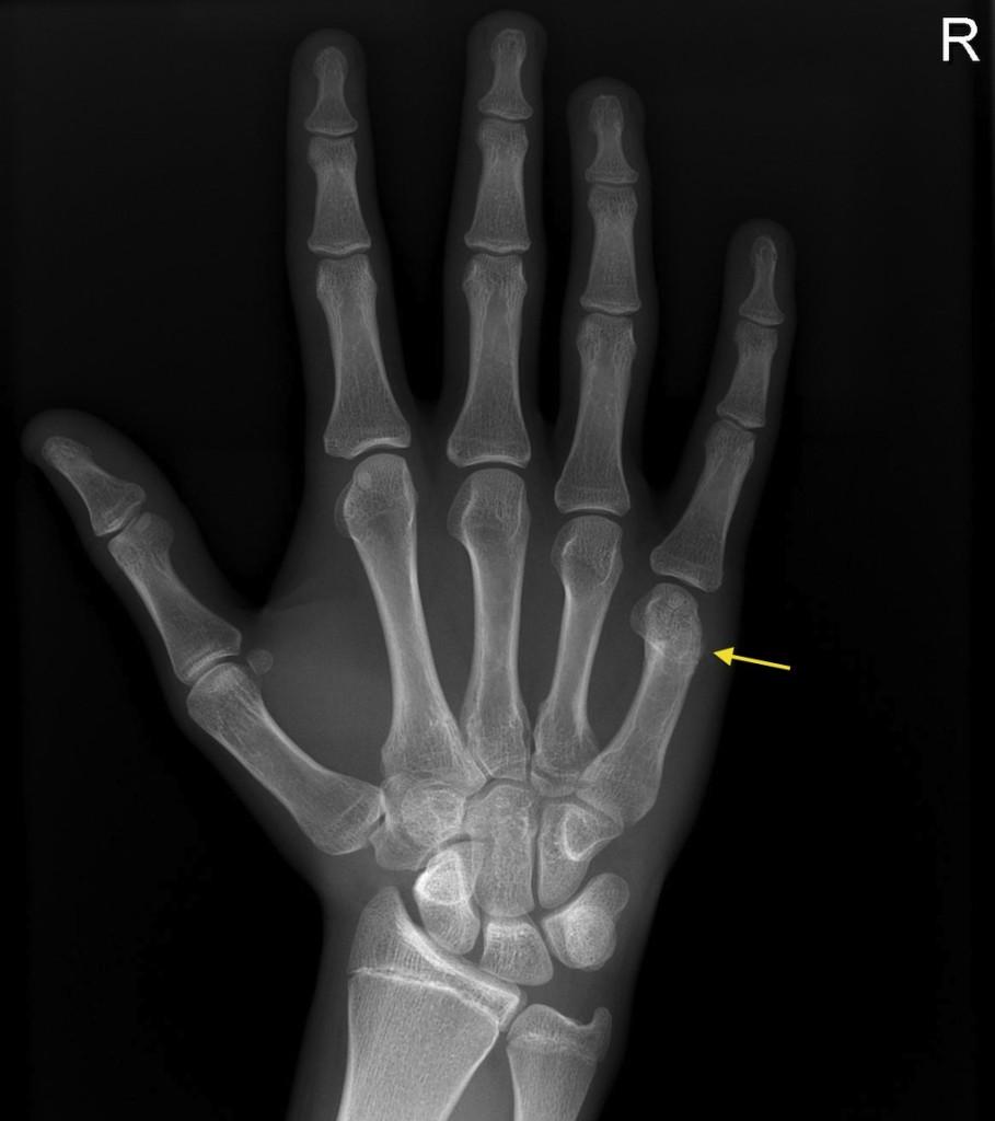 Boxer\'s fracture - Radiology at St. Vincent\'s University Hospital