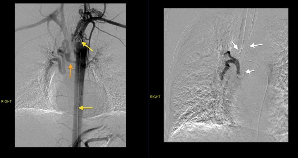 Bronchial artery embolization - Radiology at St. Vincent\'s ...