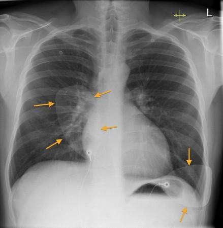 Defibrillation pads – CXR
