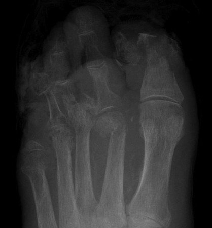 Osteomyelitis in diabetic foot