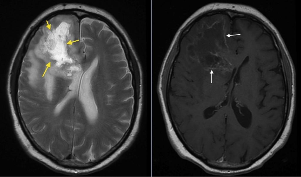 glioblastoma multiforme radiology at st vincents