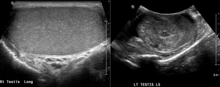 Testicular tumour