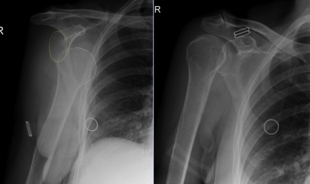 Anterior shoulder dislocation