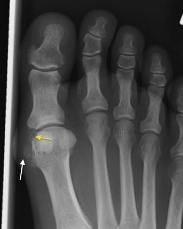 Gout – 1st MTP joint
