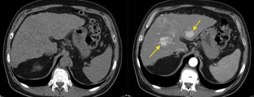 This example illustrates how much we can miss when forced to perform a non-contrast CT in someone with renal failure or a contrast allergy. The image on the left, from a triphasic CT liver, has been performed without contrast; the liver looks a little bit nodular (the patient had cirrhosis) but otherwise fine. On the right is an image from the arterial phase of the CT, taken at the same position - it shows multifocal hepatocellular carcinoma (arrows).
