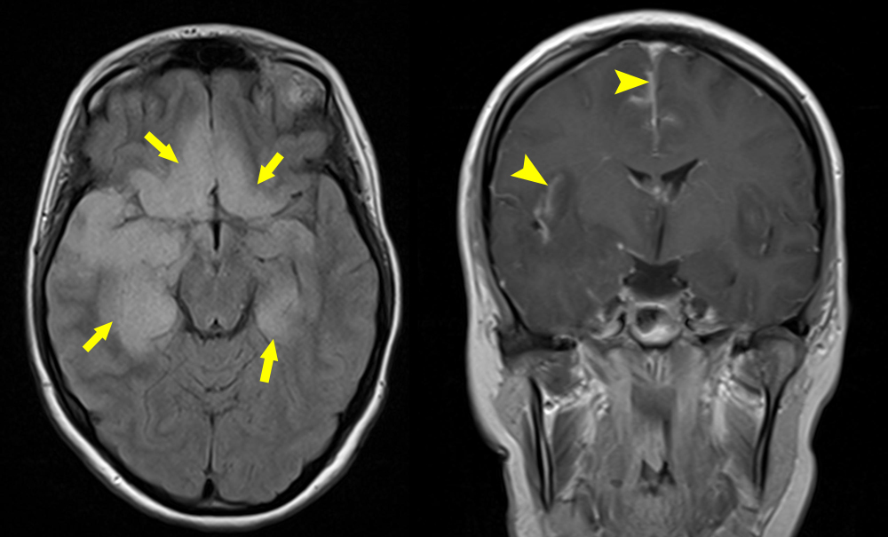 encephalitis is an infection of the brain biology essay Clinical presentation acquired infection with toxoplasma in immunocompetent persons is generally an asymptomatic infection however, 10% to 20% of patients with acute infection may develop cervical lymphadenopathy and/or a flu-like illness.