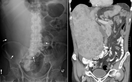Hepatomegaly due to metastases
