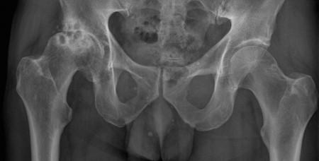 Osteoarthritis – hip