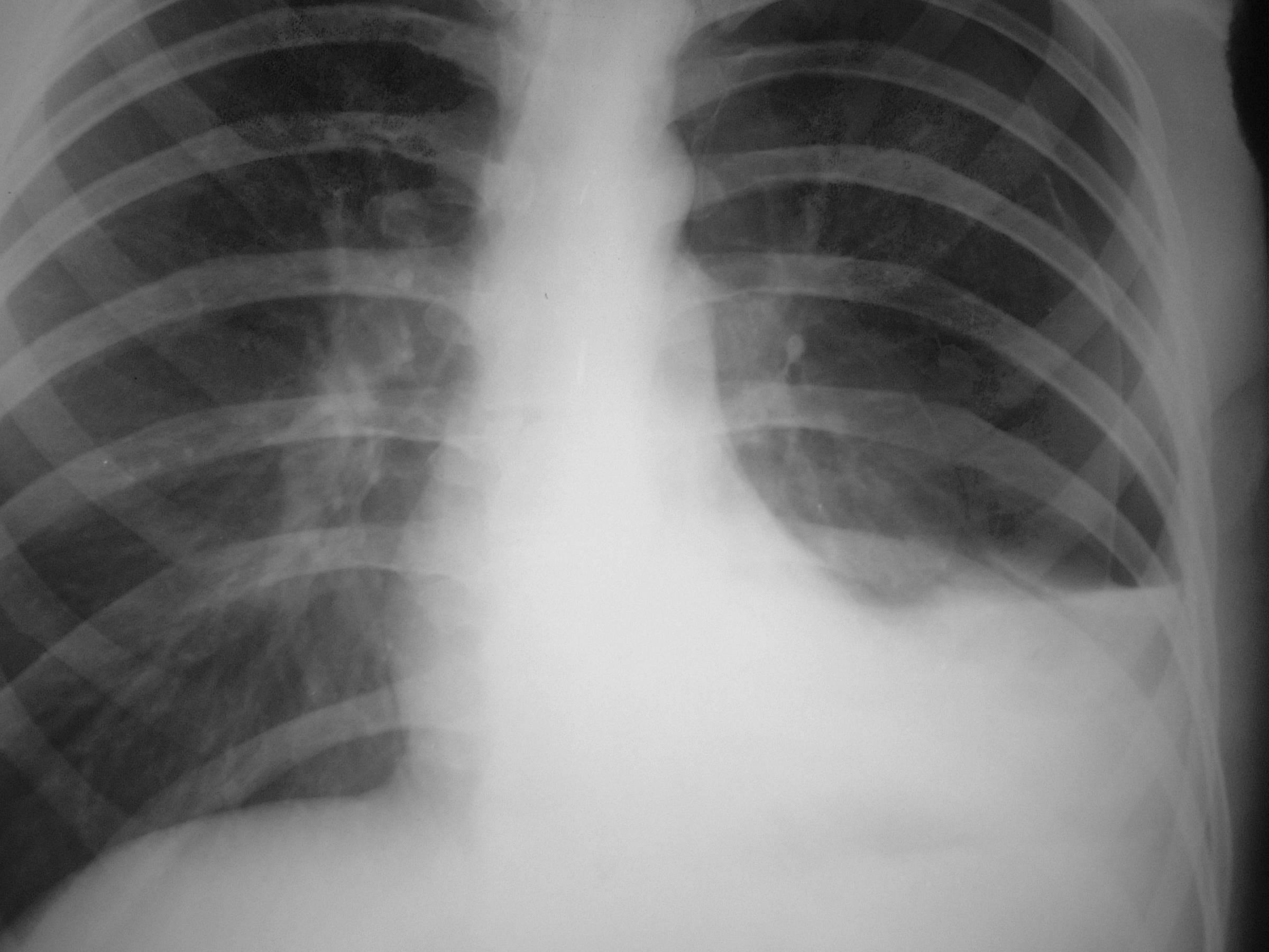 hydropneumothorax  u2013 cxr