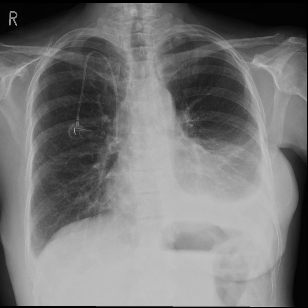 pleural effusion Information about treatment for fluid on the lung to help patients cope with their  cancer.