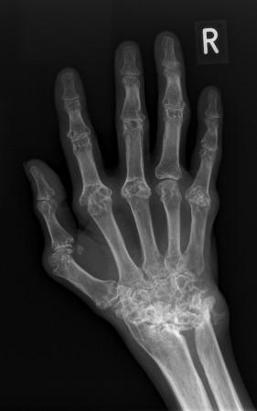 Rheumatoid arthritis – hand