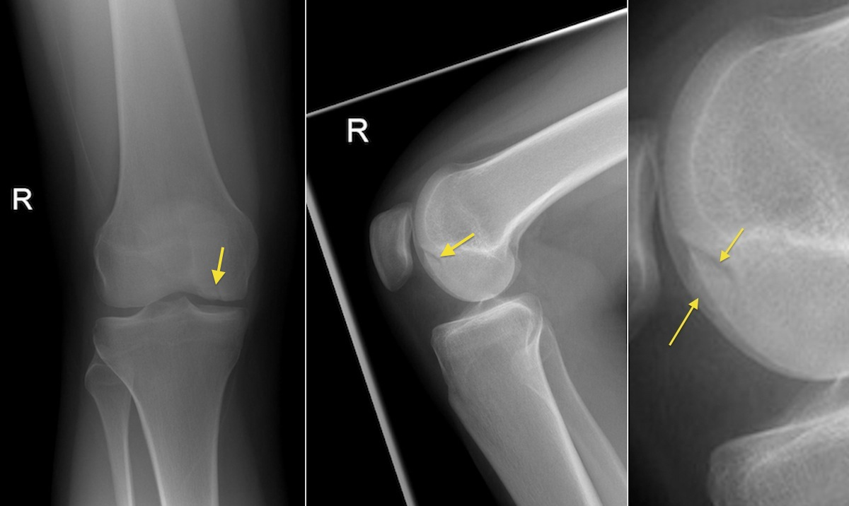Osteochondral Defect Knee Radiology At St Vincents University