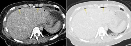 Free intraperitoneal gas – CT