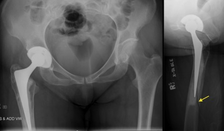 Periprosthetic femur fracture