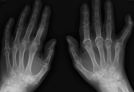 Psoriatic arthritis – hands