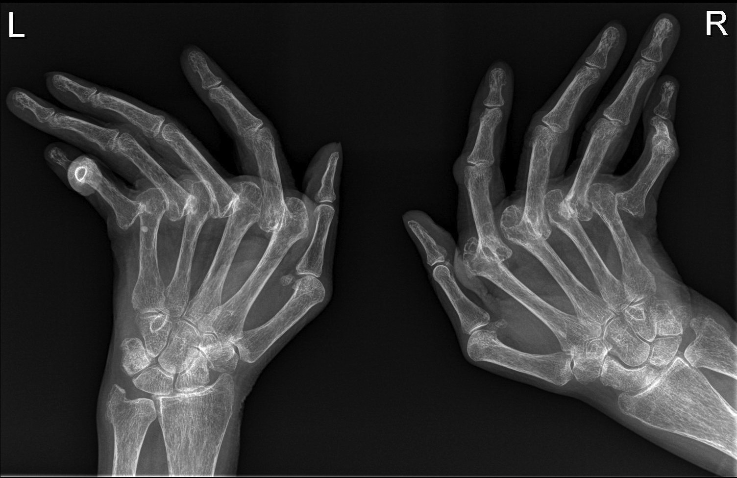 Rheumatoid arthritis - hands - Radiology at St. Vincent's ...
