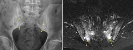 Sacroiliitis – MRI