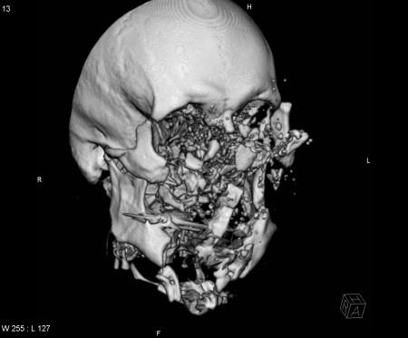 Shotgun injury – CT