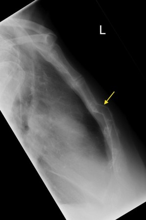 Sternal fracture