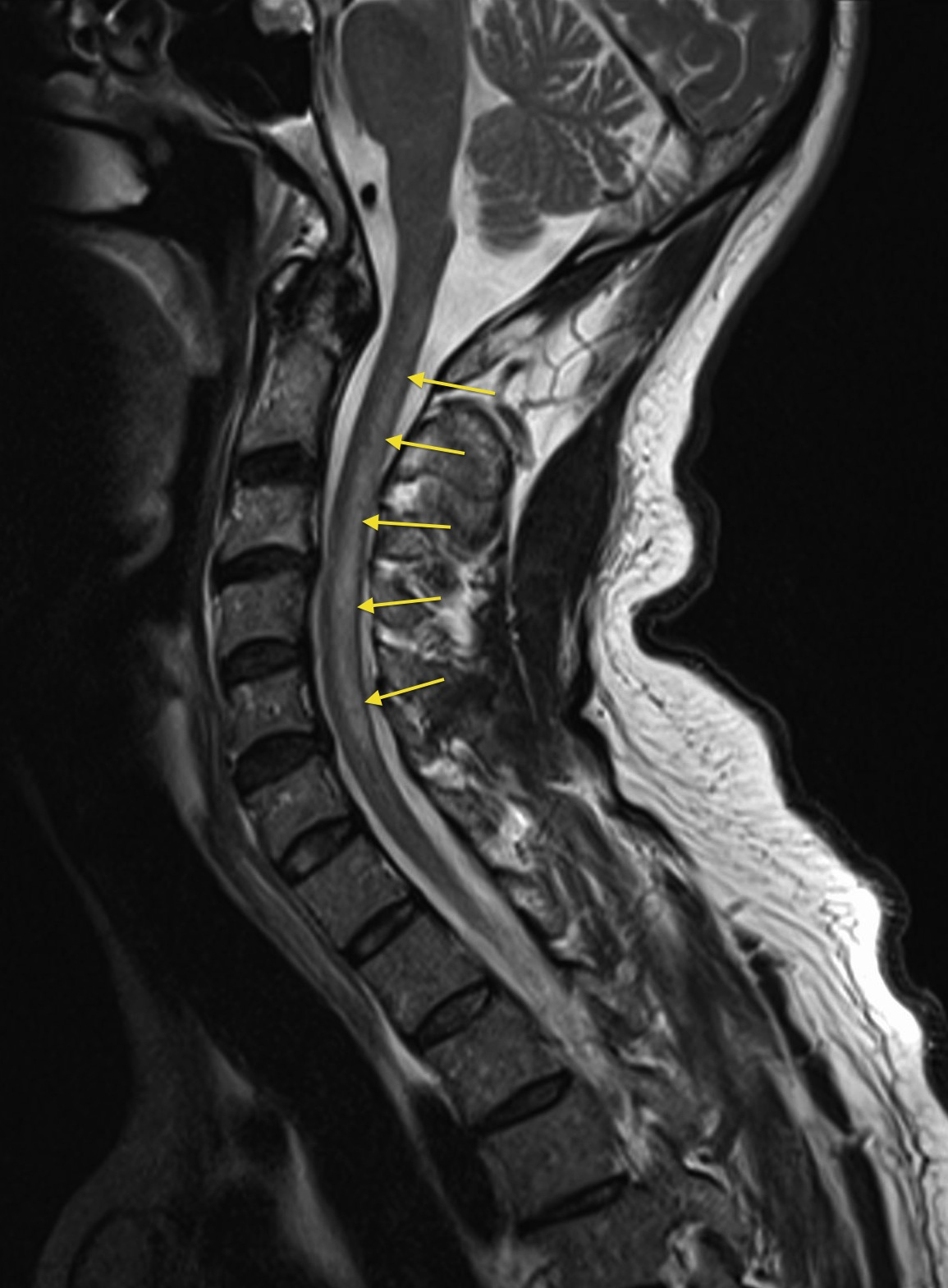 Subacute combined degeneration of the cord - Radiology at ... B12 Deficiency Spinal Cord
