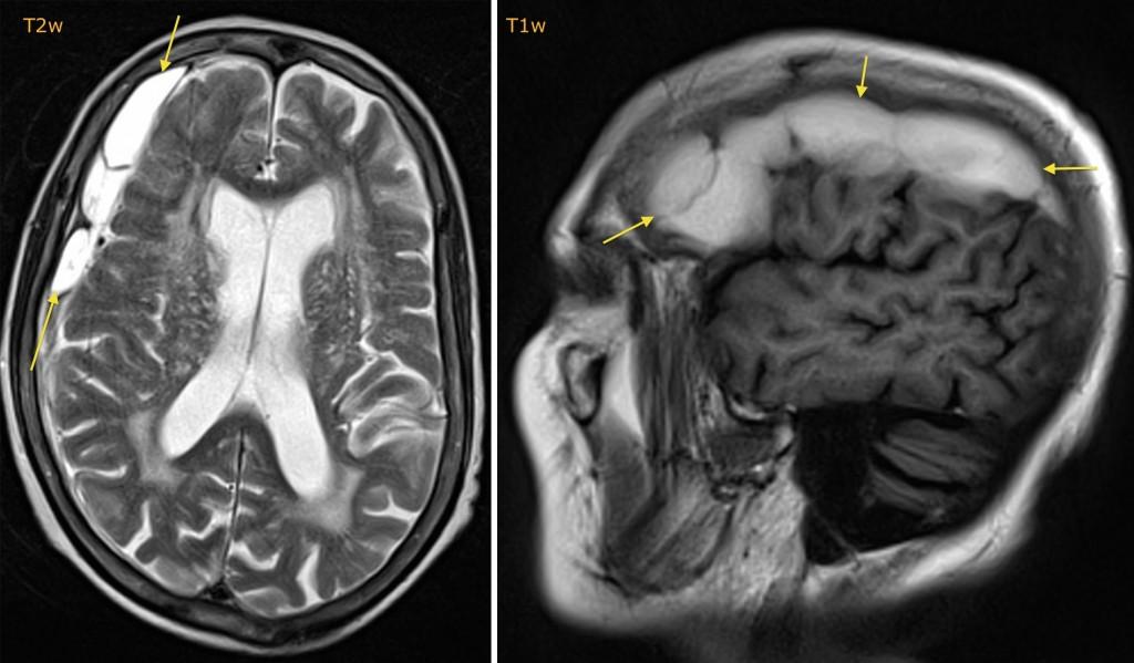 Subacute subdural haematoma - MRI - Radiology at St. Vincent\'s ...