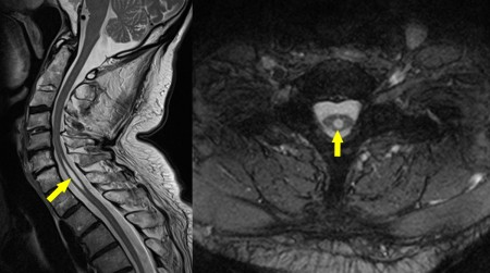 Syrinx – MRI