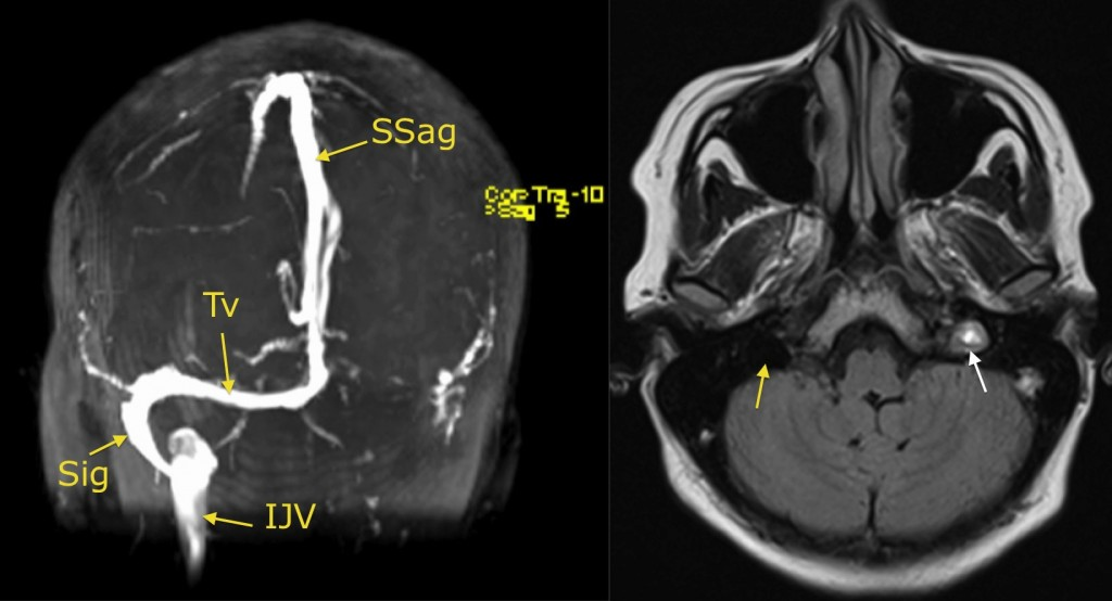 Venous sinus thrombosis - Radiology at St. Vincent\'s University Hospital