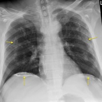 pleural plaques from asbestos exposure � ct radiology at