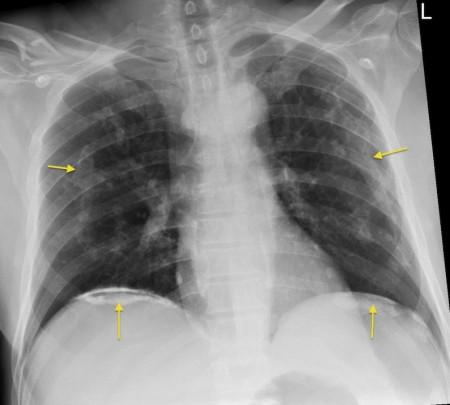 Asbestos plaques