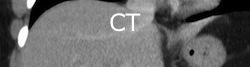 CTnew