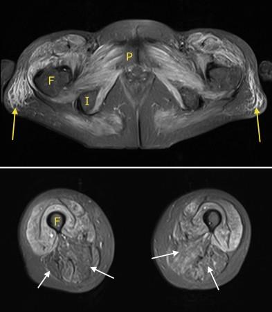 Dermatomyositis – MRI