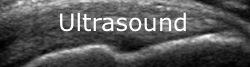 UltrasoundNew