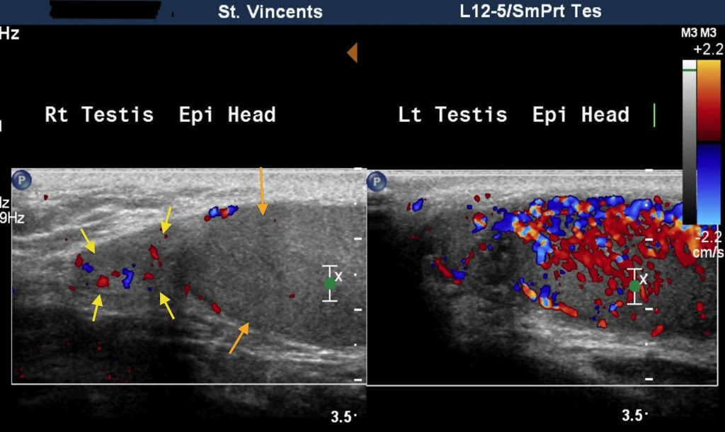 Epididymo-orchitis - ultrasound - Radiology at St. Vincent\'s ...