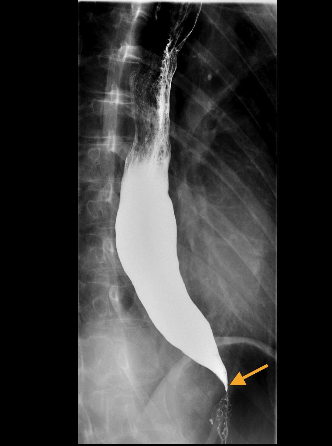 Upper GI Series Test (Barium Swallow): Procedure, Side Effects