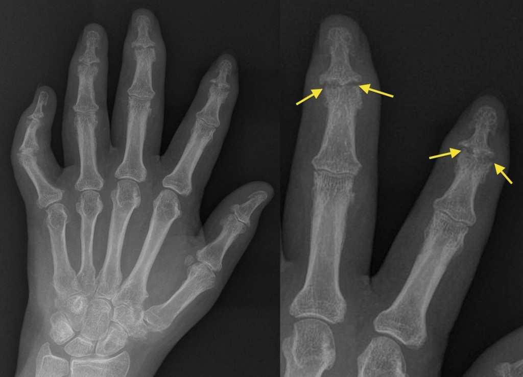 Psoriatic Arthritis Dip Erosions Radiology At St Vincents