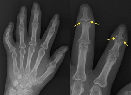 Psoriatic arthritis – DIP erosions