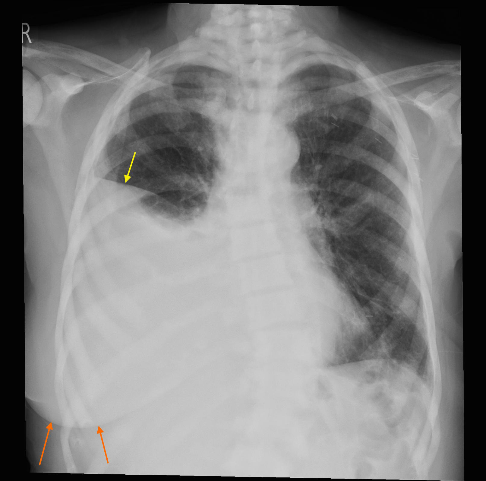 Pericardial effusion - CXR and CT - Radiology at St. Vincent\'s ...