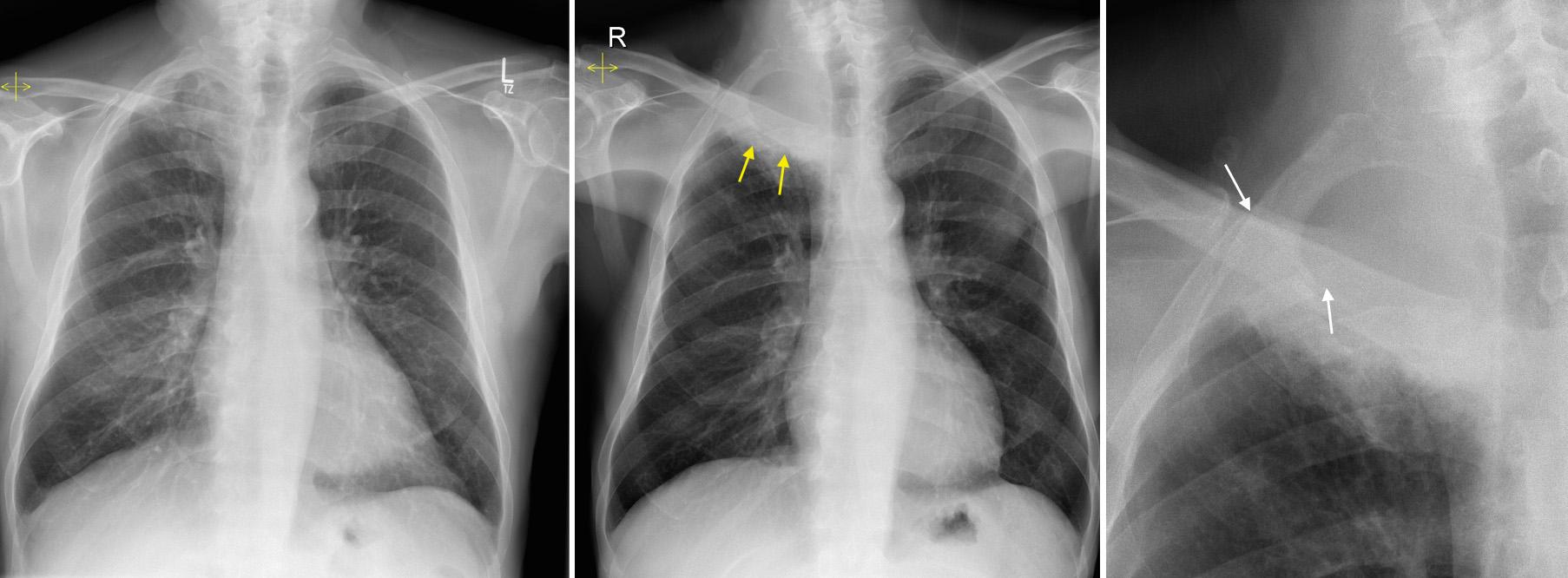 Pancoast Tumour Radiology At St Vincent S University