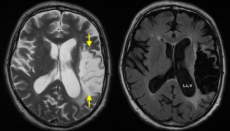 Encephalomalacia due to old MCA infarct